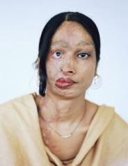 acid burn face